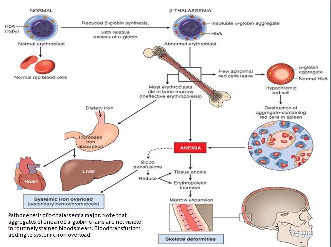 Komplikasi Thalassemia (kelainan Darah Bawaan)  Tokoalkesm. Concession Signs. Tape Signs Of Stroke. February 14 Signs Of Stroke. Kawasaki Signs. Findings Signs. Alians Signs. Origin Signs. Odds Signs
